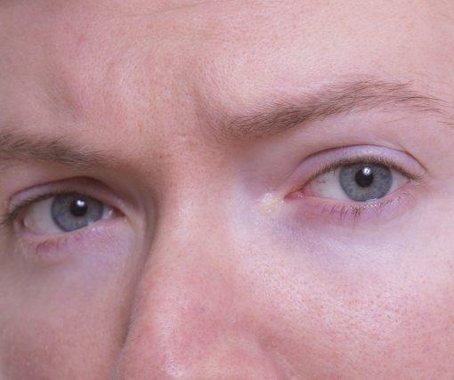 2dff83fd7 تأثير العدسات الطبية على قرنية العين   المزيد