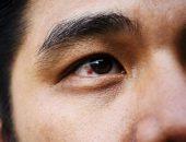 صورة , رجل , ارتفاع ضغط العين , الجلوكوما