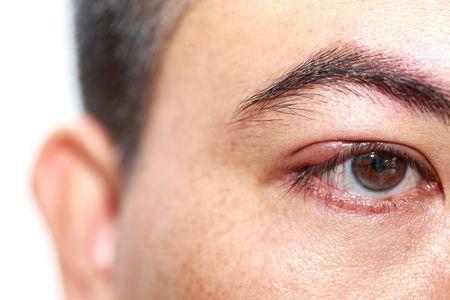 صورة , رجل , التهاب العين , عين