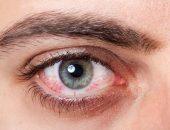 صورة , عين , الجلوكوما , ارتفاع ضغط العين