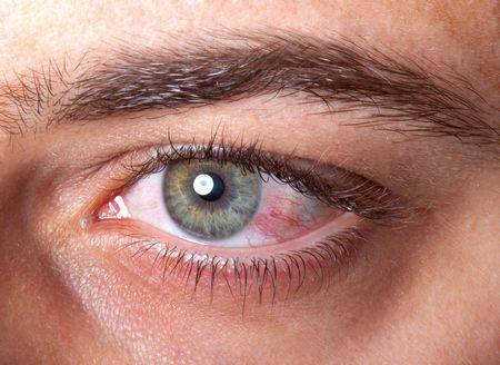 صورة , عين , مرض الجلوكوما , المياه الزرقاء