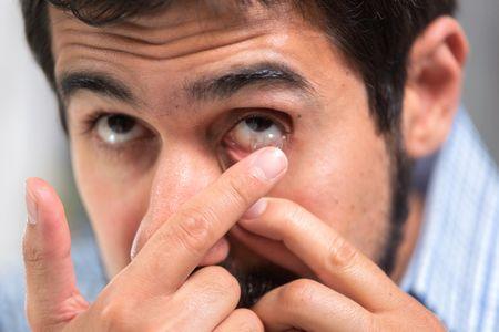 صورة , رجل , عين , العدسات اللاصقة , التهاب جفن العين