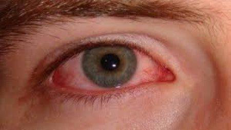 حساسية العين ، الرمد الربيعي ، الحساسية الموسمية ، التهاب الجفون