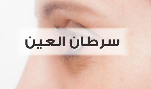 سرطان العين ، صورة ، عيون
