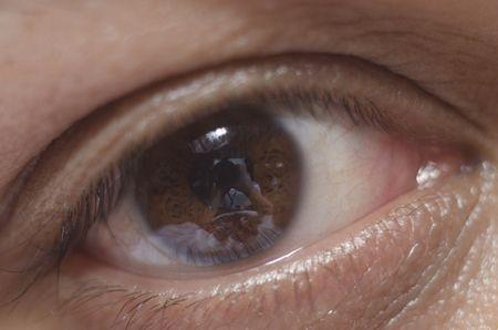 شد الجفون ، صورة ، عين