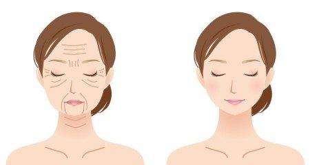 شد الوجه ، العمليات التجميلية ، ترهلات الجلد ، تجميلي