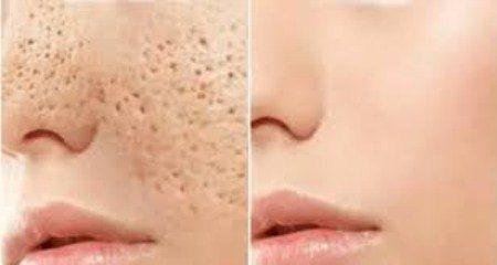 مسامات الوجه ، البشرة ، العناية بالبشرة ، العمليات التجميلية