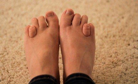 تشوهات القدم ، شكل القدم ، عظام القدم ، عمليات تجميلية