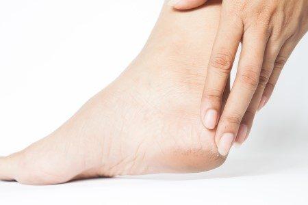تقشفات القدم ، الجلد ، تشققات القدم ، التهابات القدم الفطرية ، العناية بالقدم
