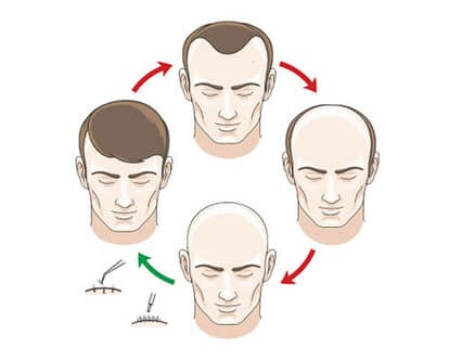 زراعة الشعر،Hair Transplant،صورة