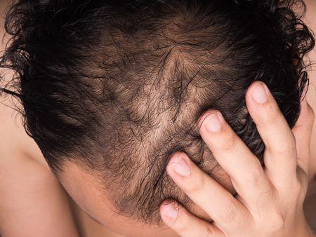 صورة , تساقط الشعر , صحة الشعر