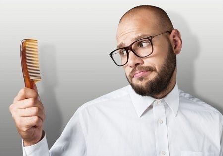 صورة , رجل , مشاكل الشعر , تساقط الشعر