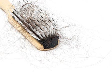 صورة , تساقط الشعر , جفاف الشعر