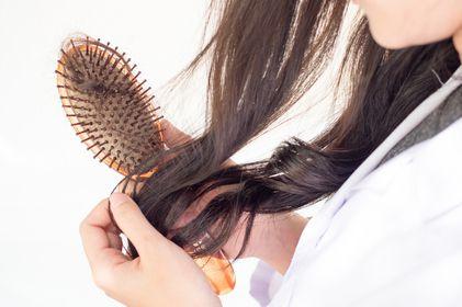 صورة , تساقط الشعر