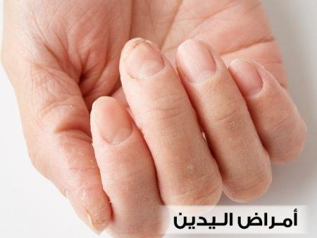 أمراض اليدين ، يد ، صورة ، أصابع