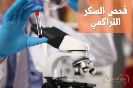 فحص السكر التراكمي , Diabetes, HbA1c