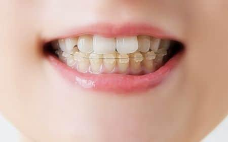 صحة الفم , صحة الأسنان ، نزيف اللثة