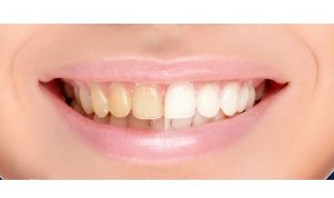 أسنان،الأسنان،صحة،صورة