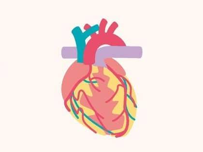 القلب , الرجفان الأذيني , صورة
