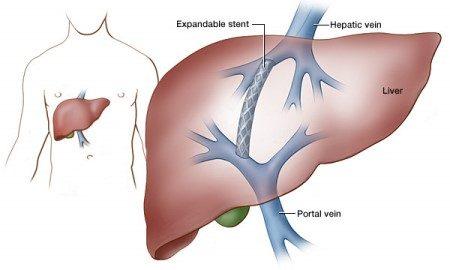 الكبد ، أمراض الكبد ، إفرازات الصفراء