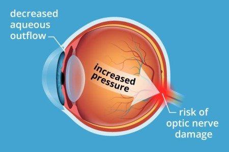 ضغط العين ، العصب البصري ، مشاكل العين ، آلالم العين ، قطرة العين