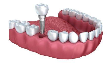 الأسنان ، زراعة الأسنان ، التهابات اللثة ، خلع الأسنان