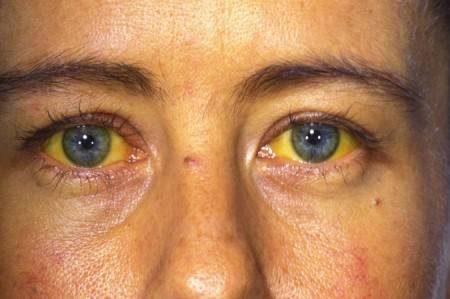 مرض اليرقان ، الكبد ، عسر الهضم ، لون الجلد ، إصفرار العين ، وظائف الكبد