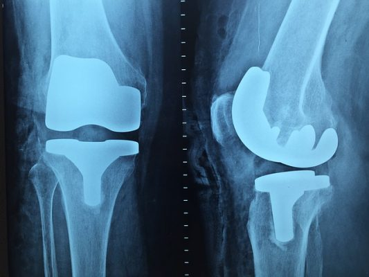 Knee pain،صورة،آلام الركبة،آشعة