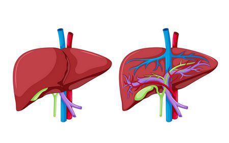 صورة , الكبد , إلتهاب الكبد الوبائي A