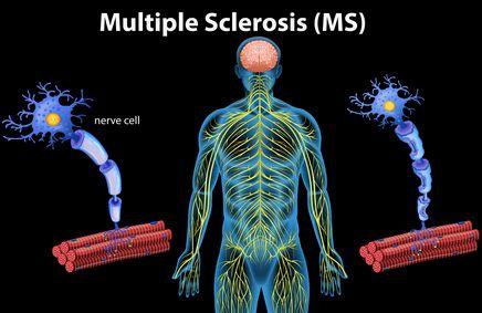 صورة , مرض التصلب المتعدد