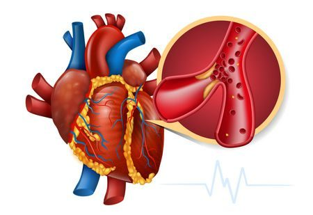 احتشاء عضلة القلب , Myocardial infarction , الجلطات القلبية , التغذية