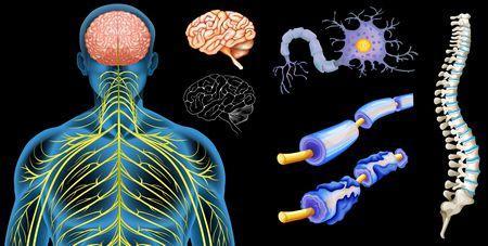 صورة , الجهاز العصبي , التصلب العصبي اللويحي