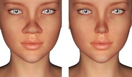 الأنف ، تجميل الأنف ، العمليات التجميلية ، جراحات التجميل