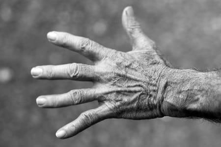تنميل, الجسم,يد,صورة