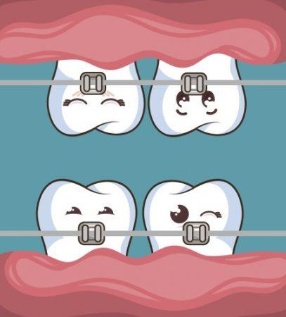 تقويم الأسنان ، مشاكل اللثة ، شكل الفكين ، التهابات اللثة