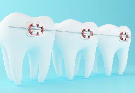 تقويم الأسنان ، الأسنان الدائمة ، خلع الأسنان ، تركيبات الأسنان