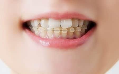 صورة , تقويم الأسنان , برد الأسنان