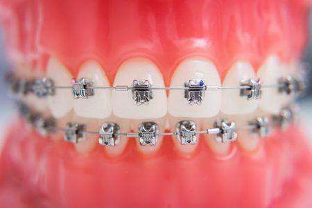تقويم الأسنان , جمال الوجه