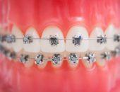 فترة علاج تقويم الأسنان