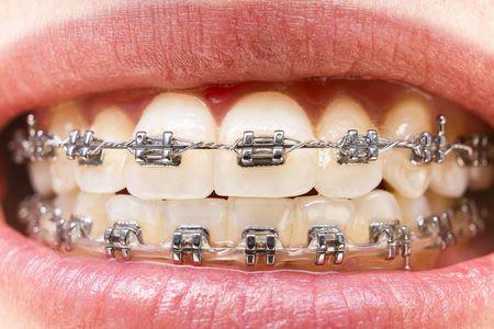 صورة , أسنان , تقويم الأسنان