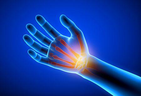 صورة , يد , هشاشة العظام