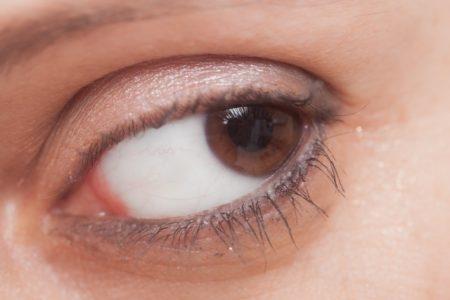 عمليات الفمتوليزك , عين , صورة , تصحيح الإبصار