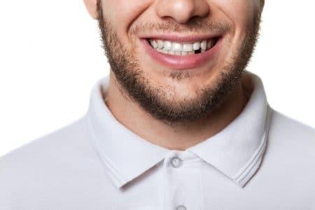 صورة , أسنان , تجميل الأسنان , قشرة البورسلان