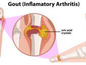 الروماتيزم ، التهابات المفاصل ، الاوعية الدموية ، المفصل