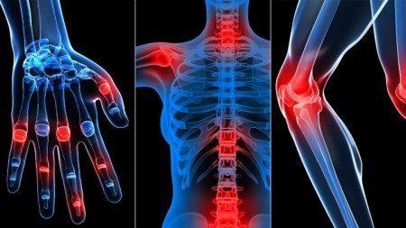 الروماتيزم ، المفاصل ، الجهاز الحركي ، التهاب المفاصل
