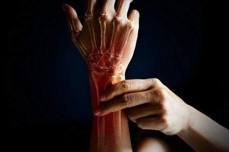 صورة , آلام المفاصل , أمراض الروماتيزم