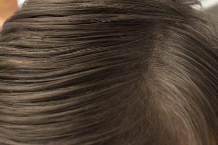 صورة , فروة الرأس , حشرة القمل