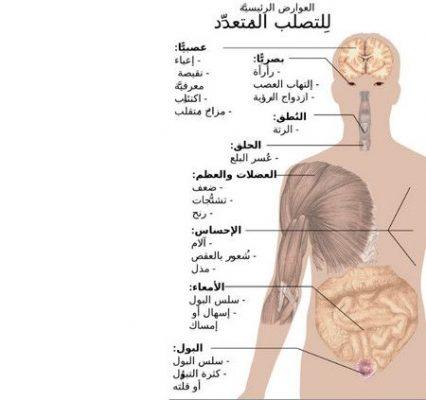 التصلب اللويحي , مرض , صورة