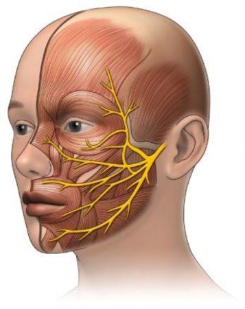 التهاب العصب السابع ، التهاب الأعصاب ، الأذن ، العين ، الشلل