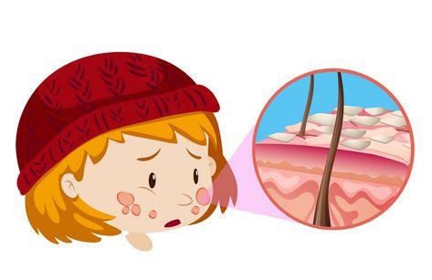 صورة , الأمراض الجلدية , داء البرص